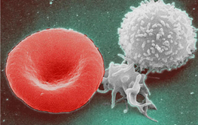 Regenerate Your Entire Immune System in 72 Hours — And it's Safe