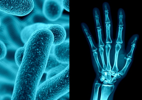 Is Your Joint Pain Coming From Your Gut? Studies