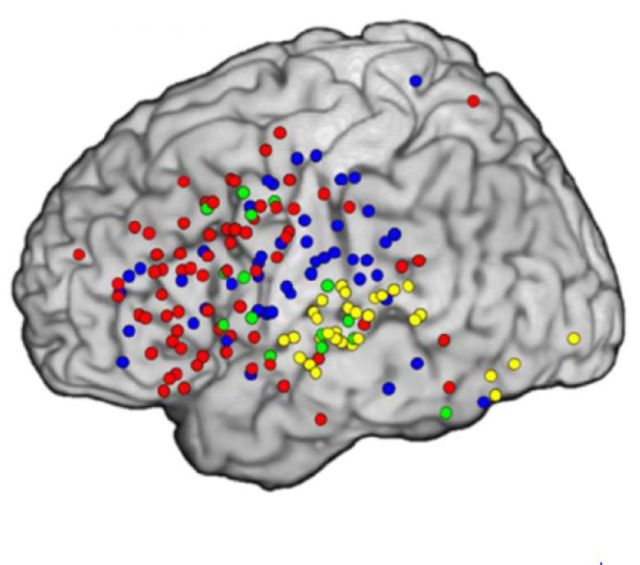 See the Video: Researchers Record a Thought's Fleeting Trip through the Brain