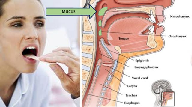 How To Get Stuck Food Out Of Your Esophagus