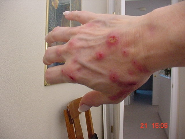 Hepatitis C Sores and Itching
